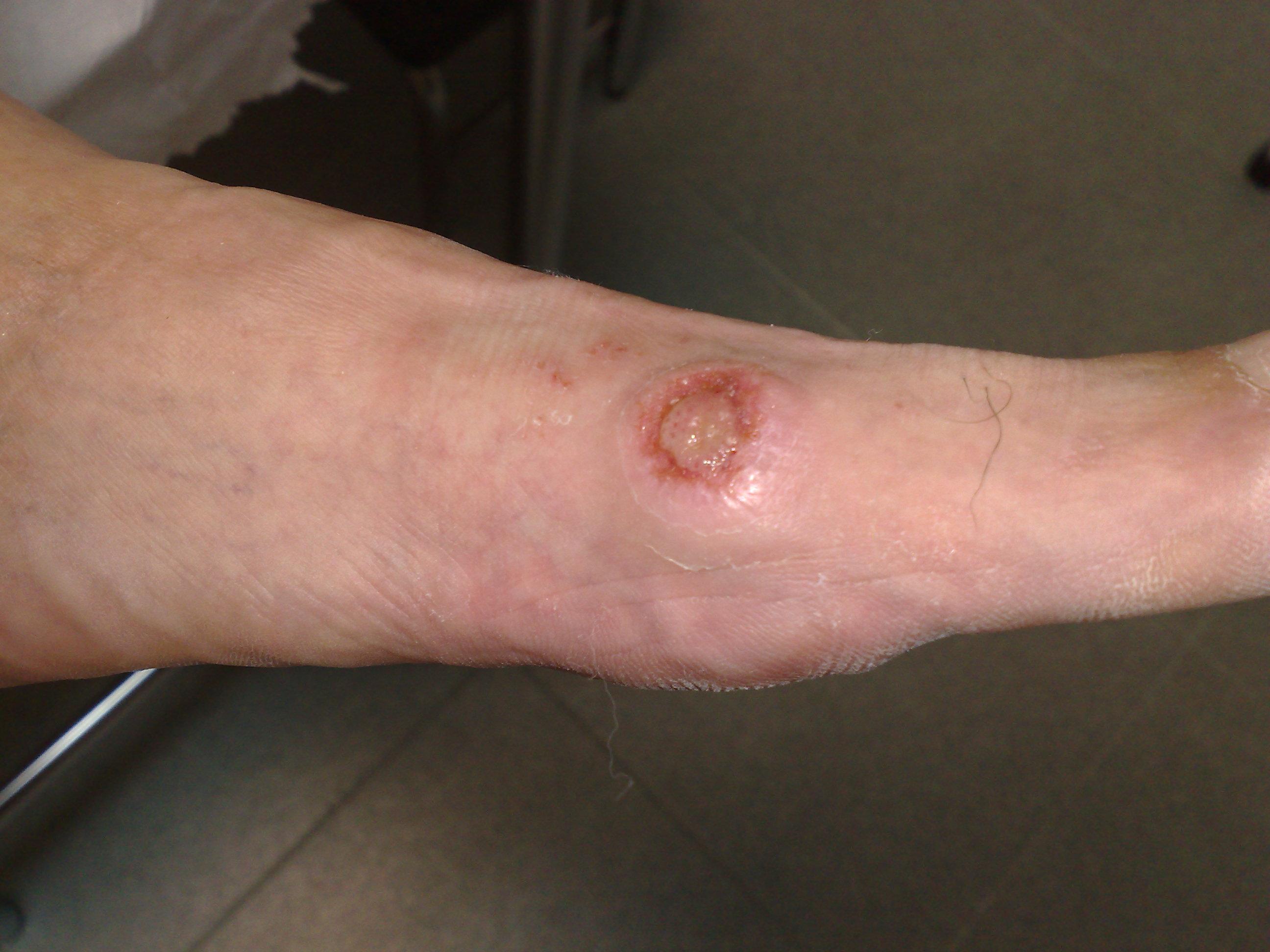 Los síntomas skvamoznoy las formas del hongo del pies