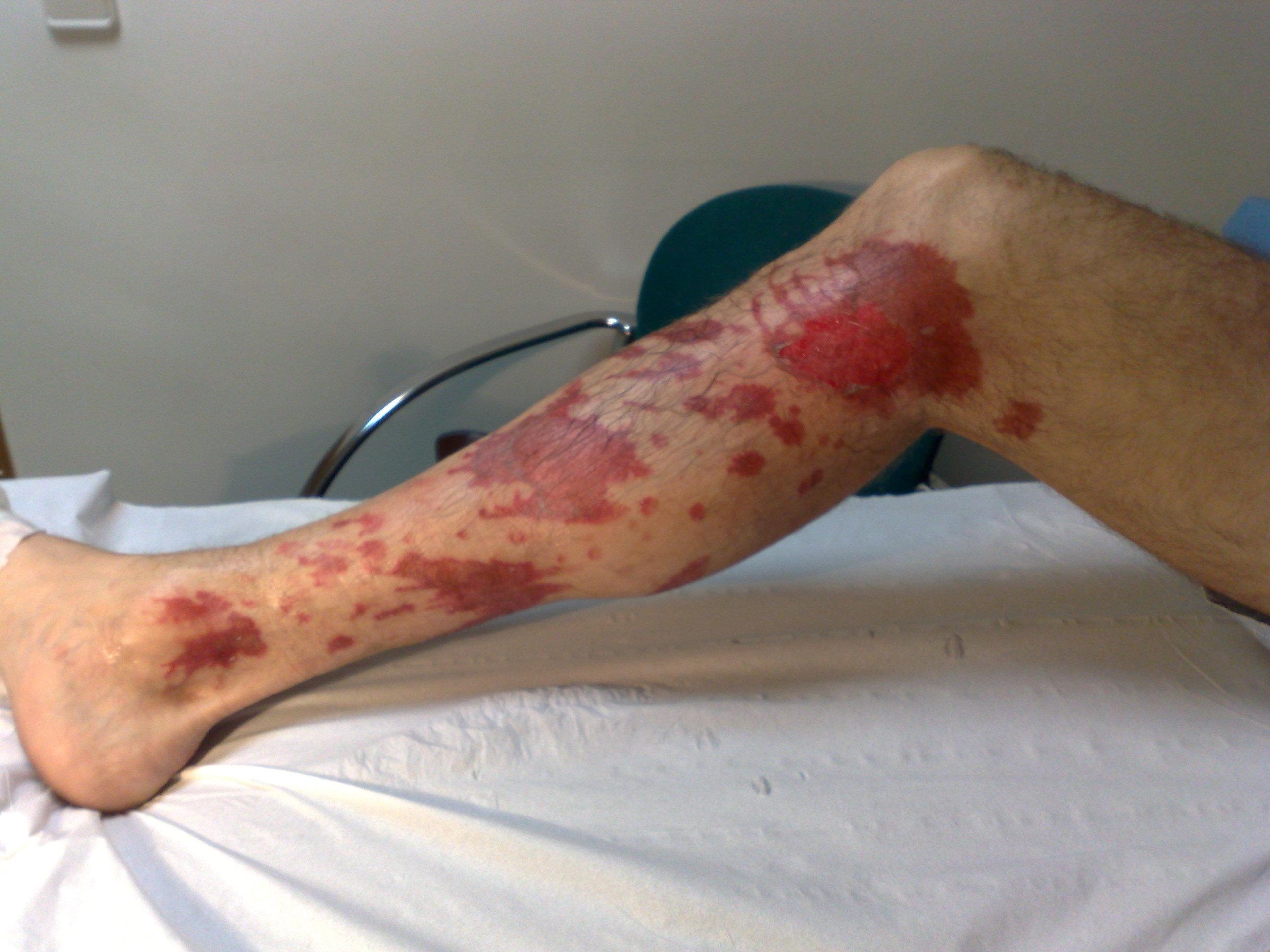 La foto de la psoriasis a los lactantes