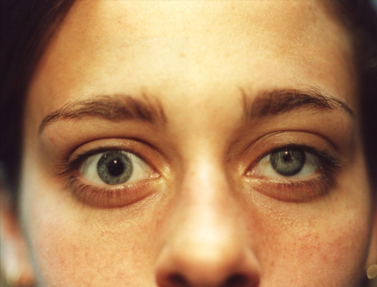 Las lentes las bolsas en los ojos