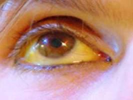 ojo icterico