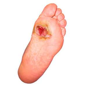 piediabetico-1