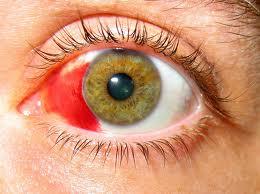 ojo equimosis