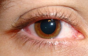 ojo midriatico
